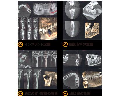 インプラント治療 親知らずの抜歯 あごの骨・関節の診断 埋伏歯の診断