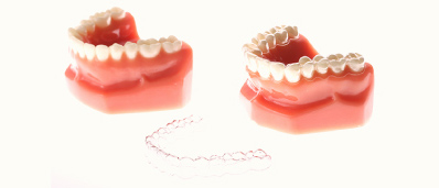 orthodontic_img2