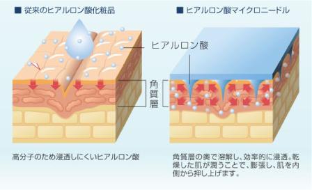 ■従来のヒアルロン酸化粧品 高分子のため浸透しにくいヒアルロン酸 ■ヒアルロン酸マイクロニードル 角質層の裏で溶解し、効率的に浸透。乾燥した肌が潤うことで、膨張し、肌を内側から押し上げます。